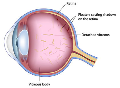 Retinal Detachmant and Floaters Diagram