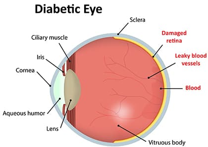 Diabetic Eye Problems Diagram