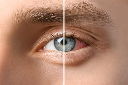 Normal vs Irridtated eye